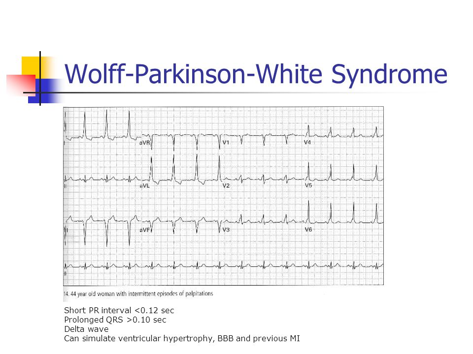 Wolff-Parkinson-White Syndrome Short PR interval <0.12 sec Prolonged QRS >0.10 sec Delta wave Can simulate ventricular hypertrophy, BBB and previous MI