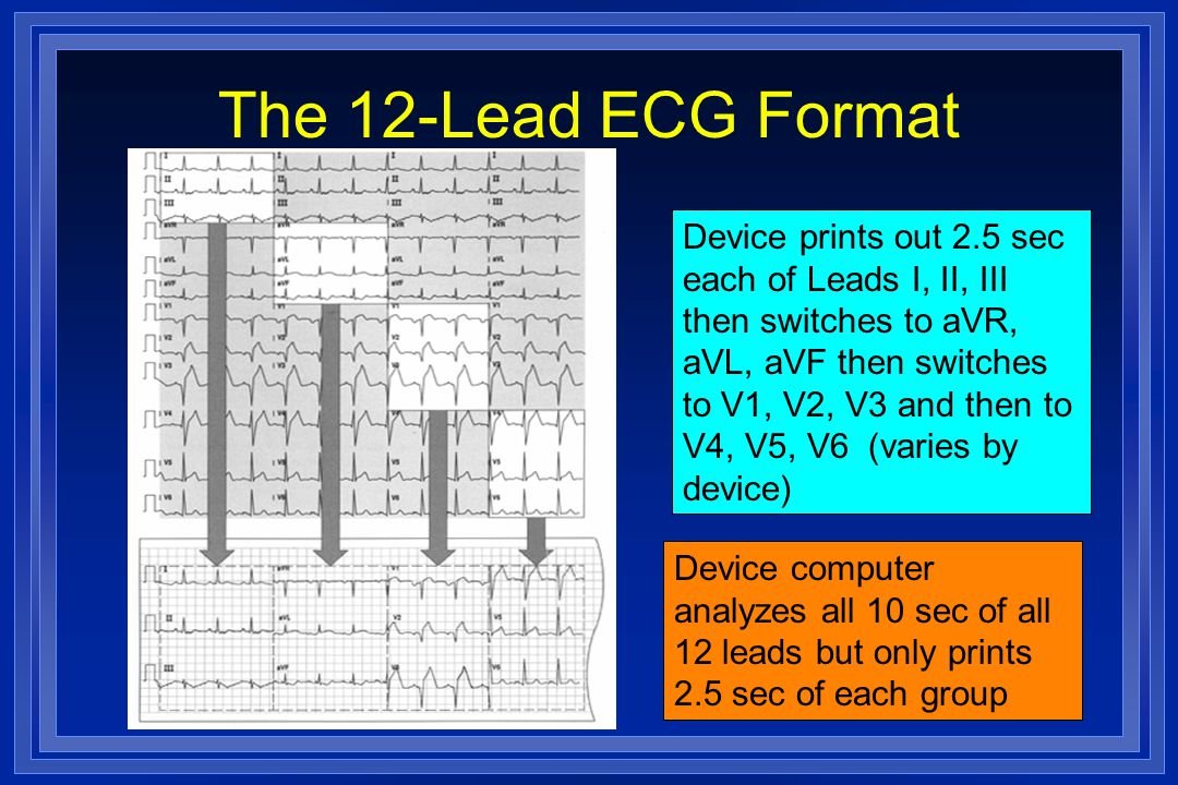 The 12-Lead ECG Format Device prints out 2.5 sec each of Leads I, II, III then switches to aVR, aVL, aVF then switches to V1, V2, V3 and then to V4, V