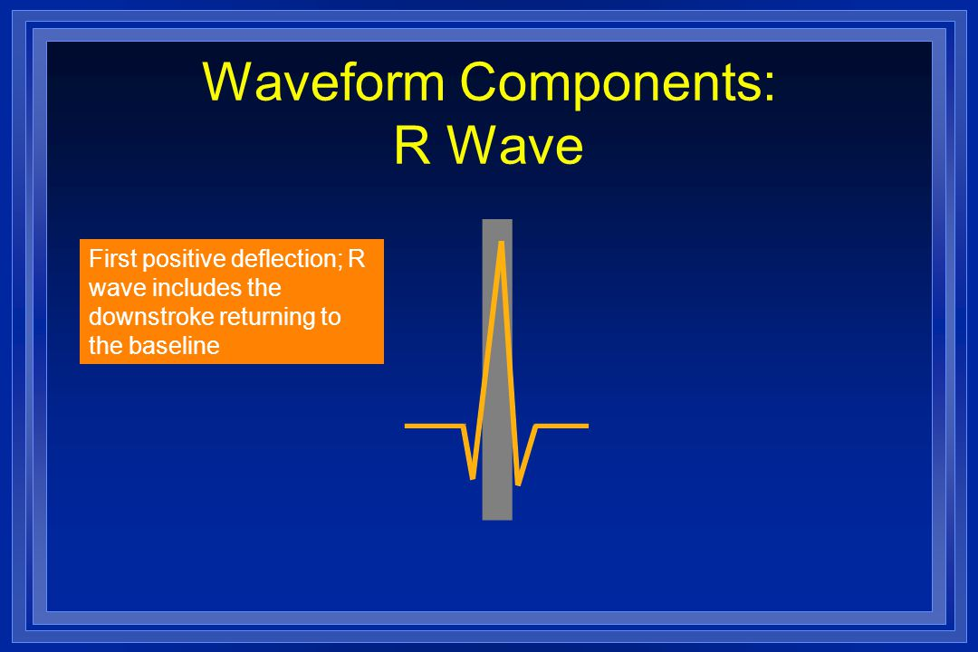 Waveform Components: R Wave First positive deflection; R wave includes the downstroke returning to the baseline