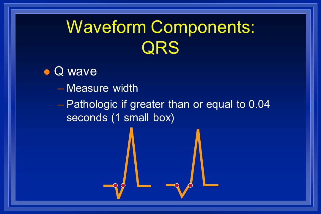 Waveform Components: QRS l Q wave –Measure width –Pathologic if greater than or equal to 0.04 seconds (1 small box)