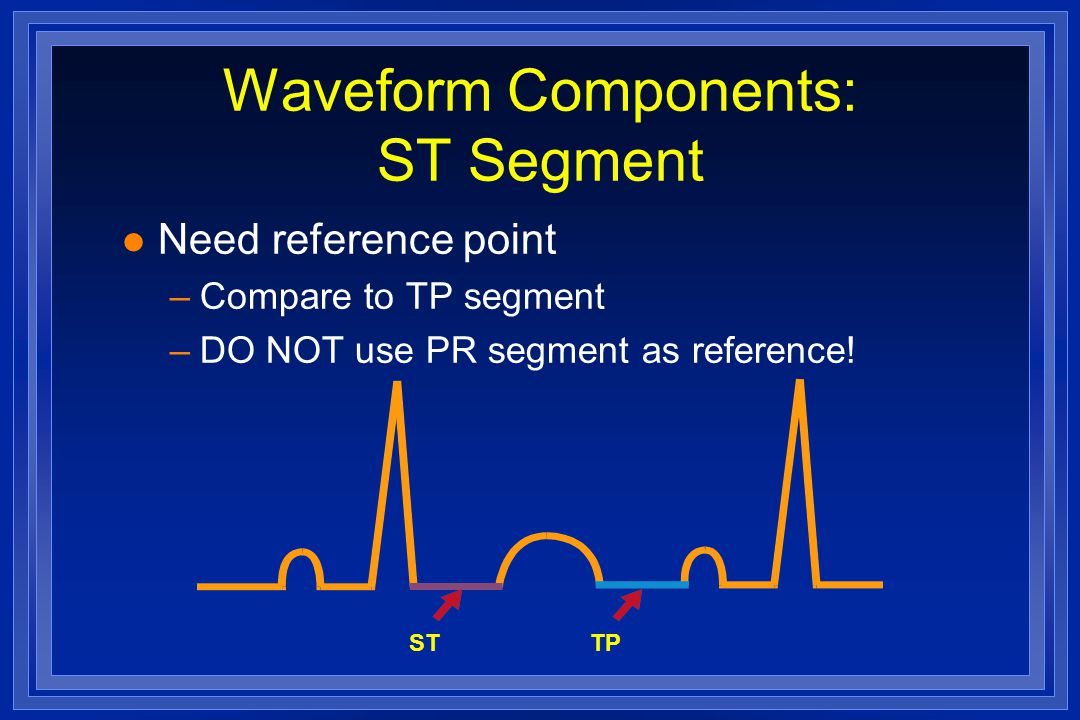 Waveform Components: ST Segment l Need reference point –Compare to TP segment –DO NOT use PR segment as reference! STTP