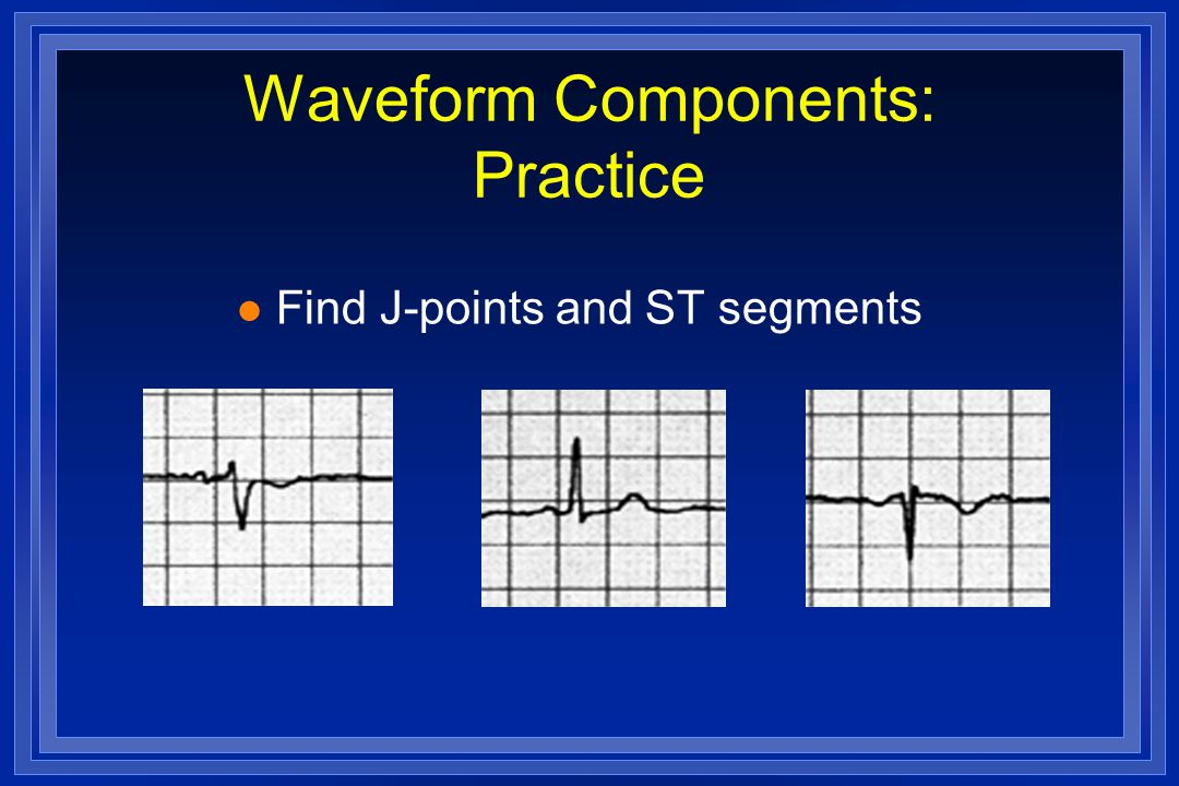 Waveform Components: Practice l Find J-points and ST segments