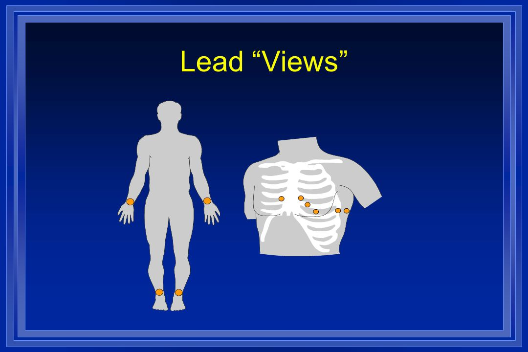"Lead ""Views"""