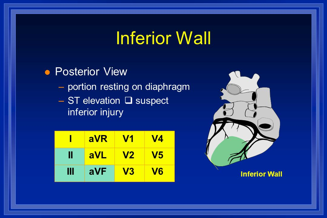 Inferior Wall I II III aVR aVL aVF V1 V2 V3 V4 V5 V6 l Posterior View –portion resting on diaphragm –ST elevation  suspect inferior injury