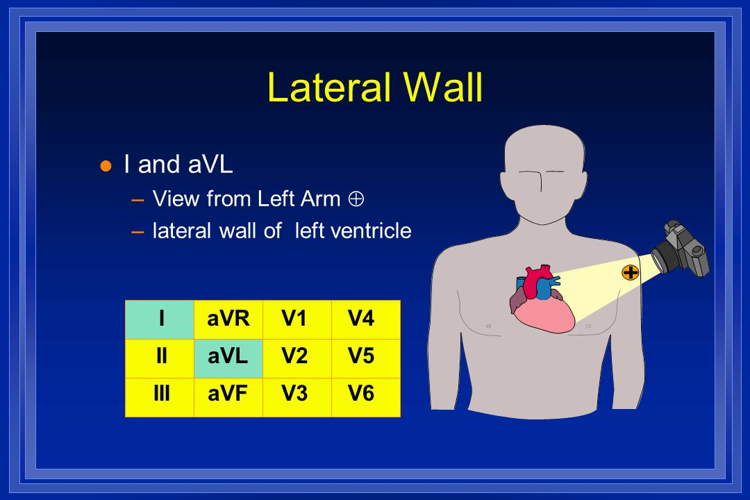 Lateral Wall l I and aVL –View from Left Arm  –lateral wall of left ventricle I II III aVR aVL aVF V1 V2 V3 V4 V5 V6