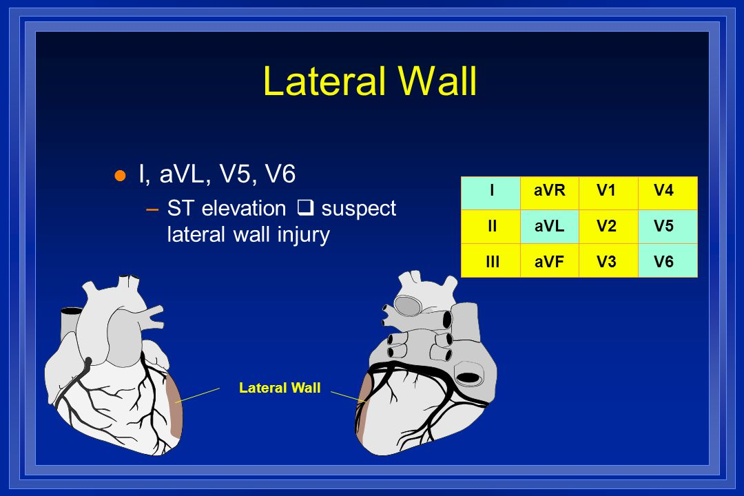Lateral Wall l I, aVL, V5, V6 –ST elevation  suspect lateral wall injury I II III aVR aVL aVF V1 V2 V3 V4 V5 V6