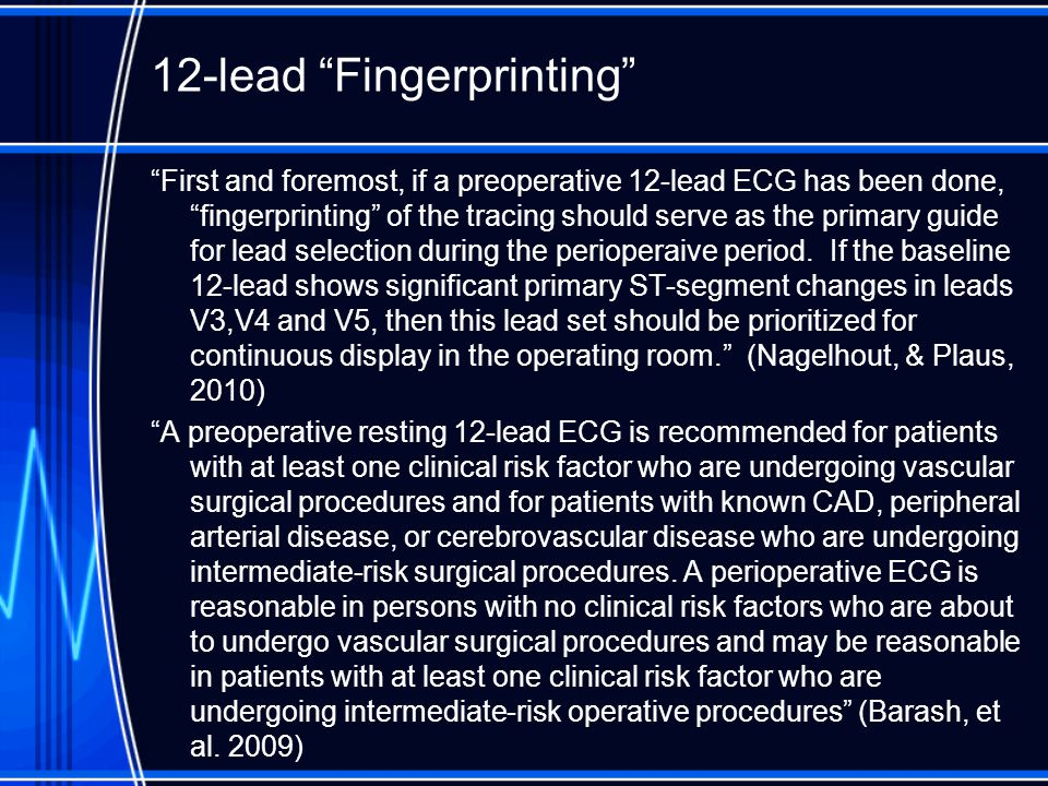 """12-lead """"Fingerprinting"""" """"First and foremost, if a preoperative 12-lead ECG has been done, """"fingerprinting"""" of the tracing should serve as the primary"""