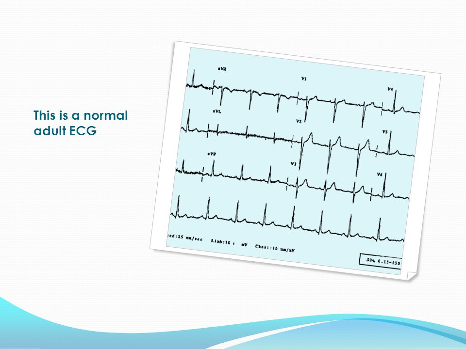 This is a normal adult ECG