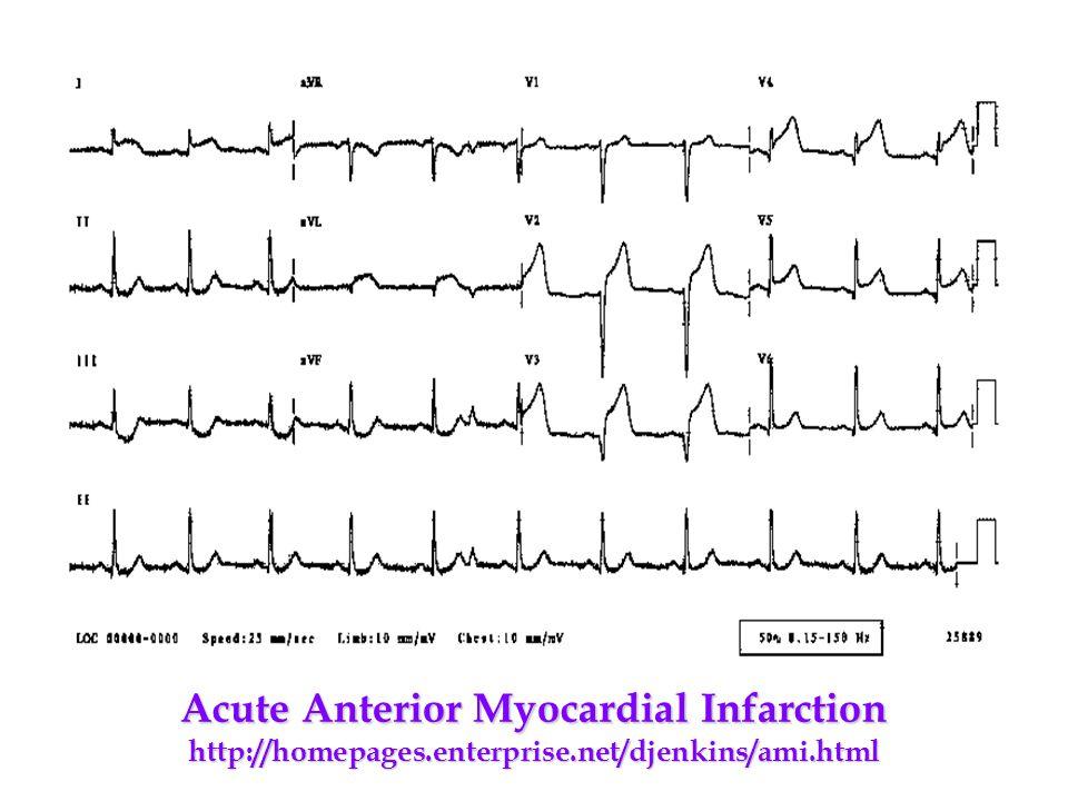 Acute Anterior Myocardial Infarction http://homepages.enterprise.net/djenkins/ami.html