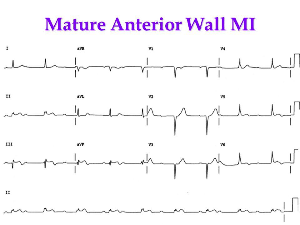 Mature Anterior Wall MI