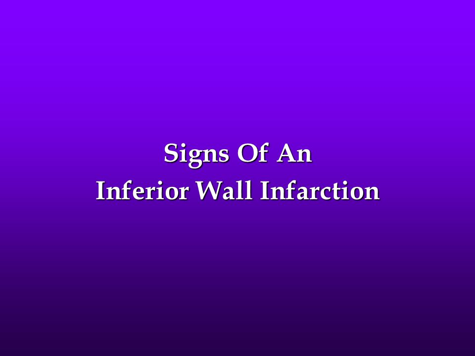 Signs Of An Inferior Wall Infarction