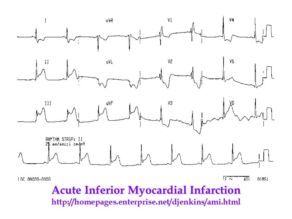 Acute Inferior Myocardial Infarction http://homepages.enterprise.net/djenkins/ami.html