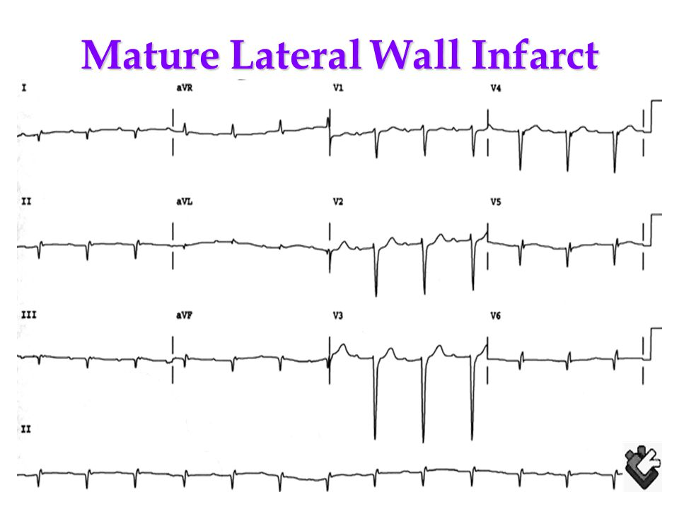 Mature Lateral Wall Infarct