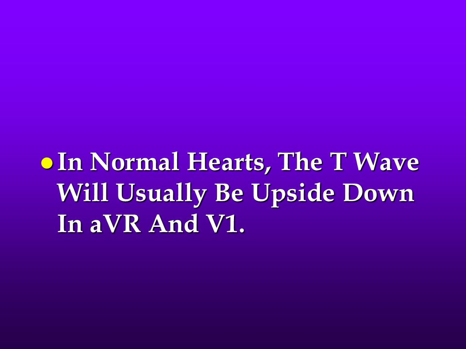 l In Normal Hearts, The T Wave Will Usually Be Upside Down In aVR And V1.