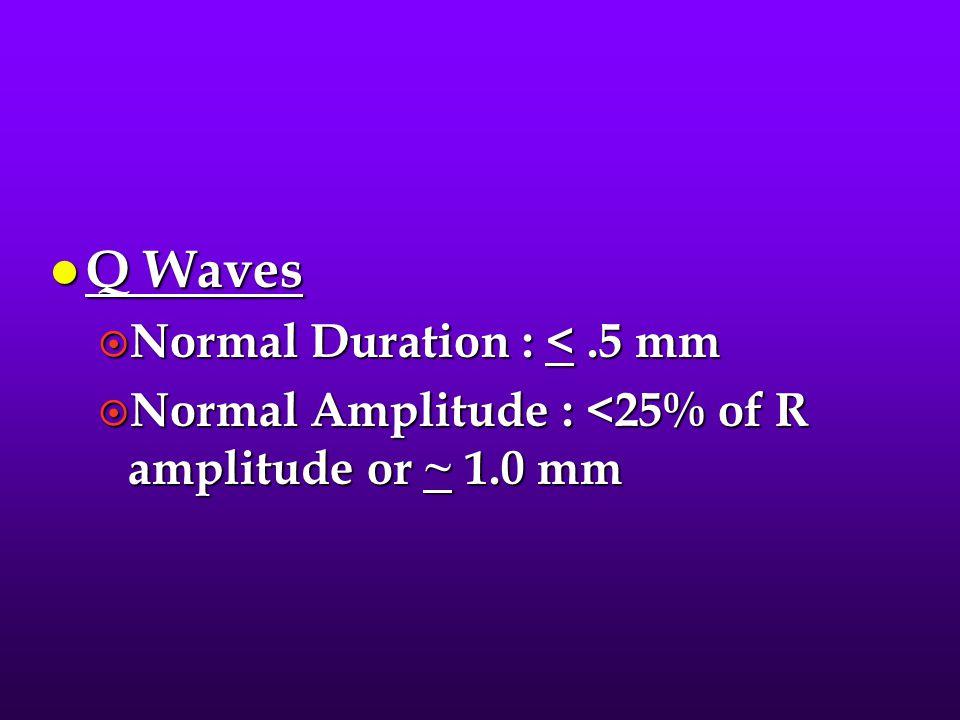 l Q Waves ¤ Normal Duration : <.5 mm ¤ Normal Amplitude : <25% of R amplitude or ~ 1.0 mm
