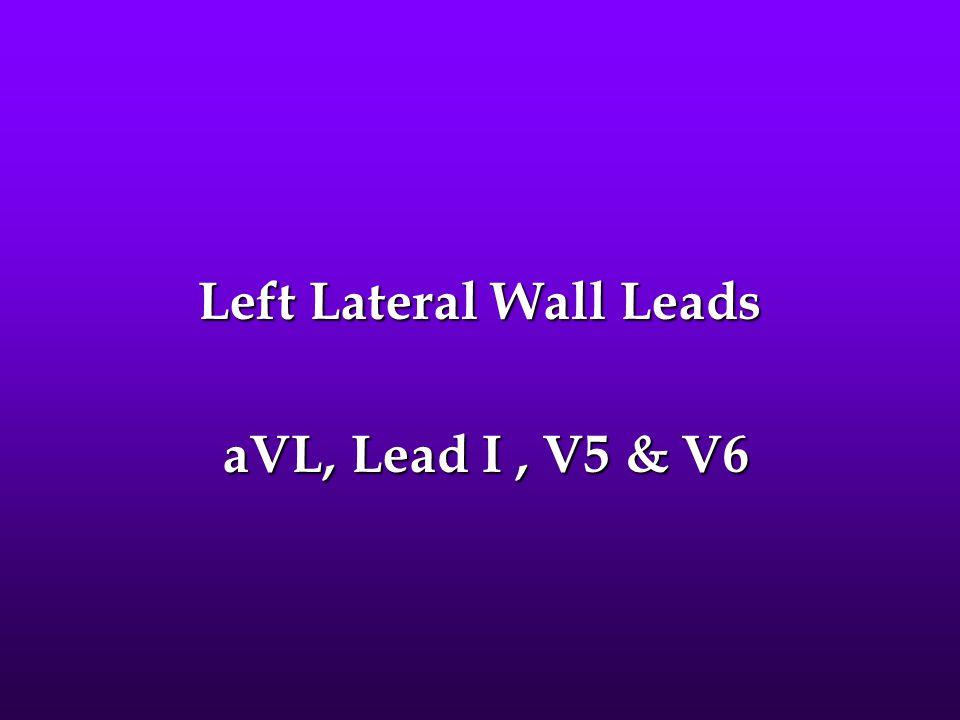 Left Lateral Wall Leads aVL, Lead I, V5 & V6 aVL, Lead I, V5 & V6