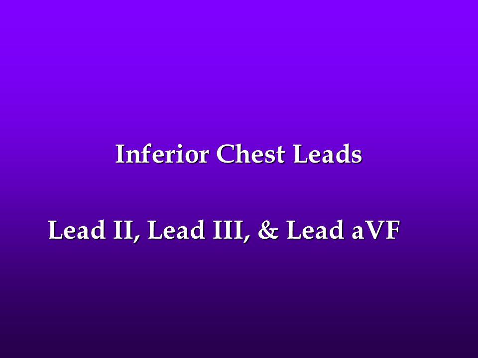 Inferior Chest Leads Lead II, Lead III, & Lead aVF Lead II, Lead III, & Lead aVF