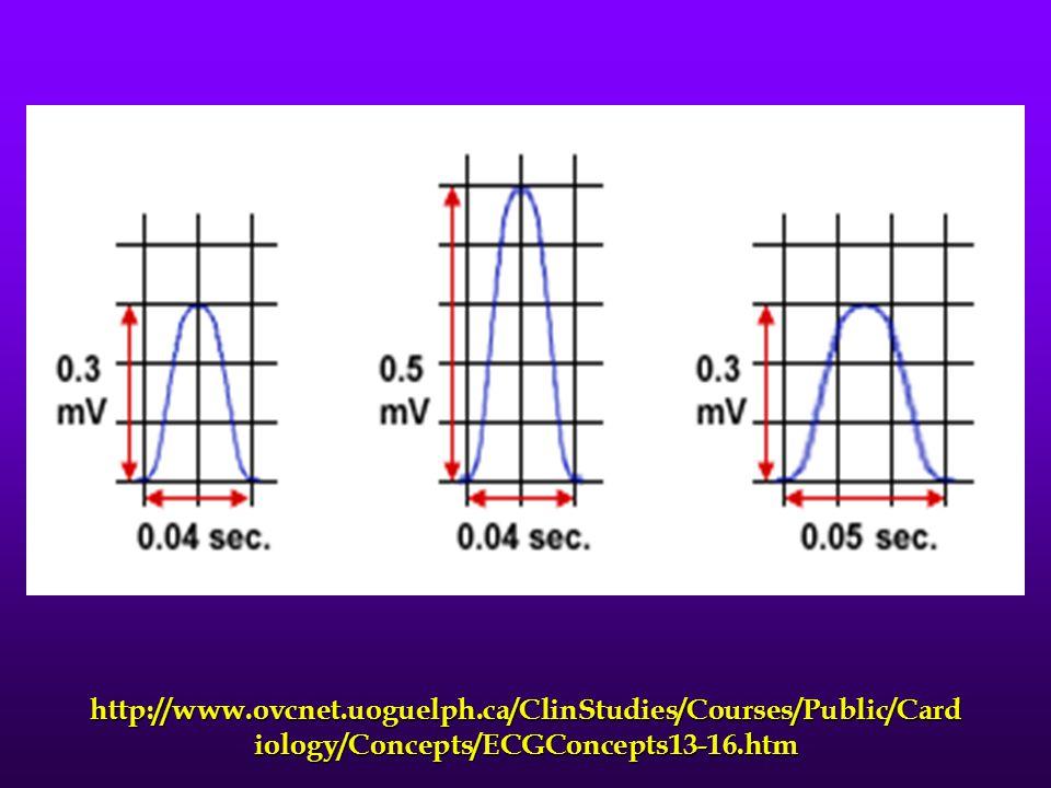 http://www.ovcnet.uoguelph.ca/ClinStudies/Courses/Public/Card iology/Concepts/ECGConcepts13-16.htm
