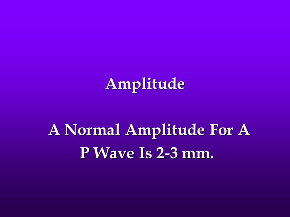 Amplitude A Normal Amplitude For A A Normal Amplitude For A P Wave Is 2-3 mm. P Wave Is 2-3 mm.