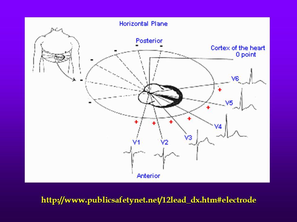 http://www.publicsafetynet.net/12lead_dx.htm#electrode