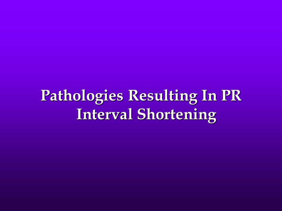 Pathologies Resulting In PR Interval Shortening