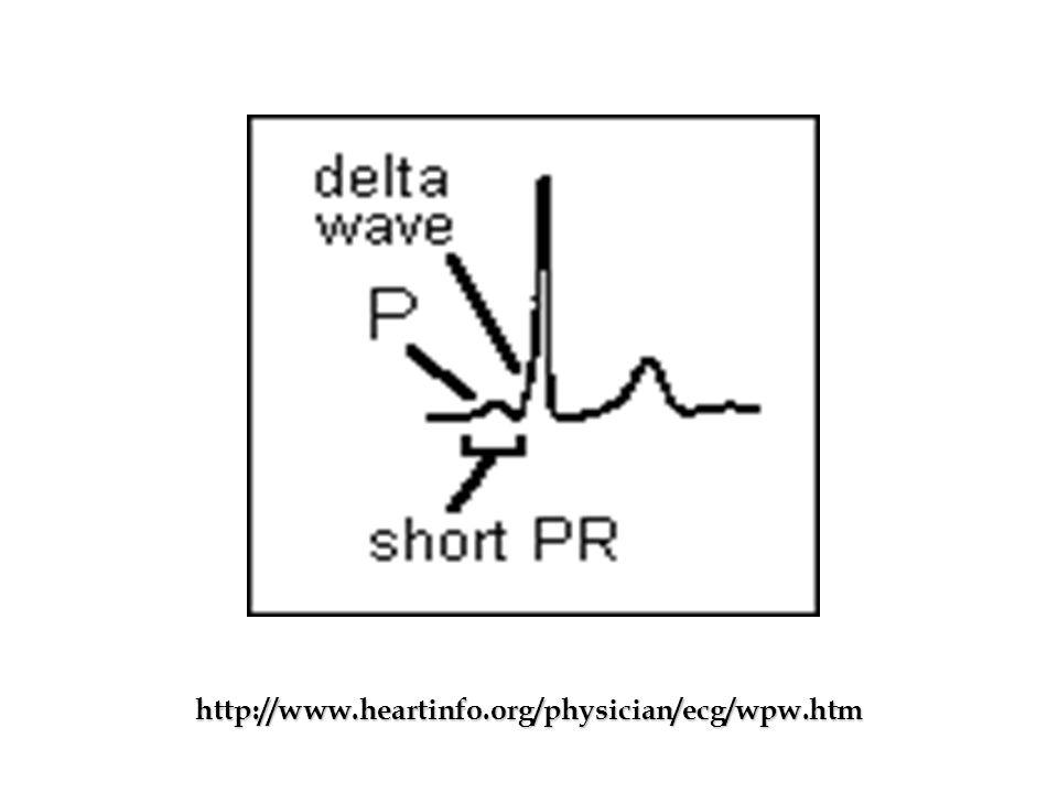 http://www.heartinfo.org/physician/ecg/wpw.htm