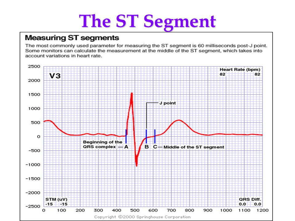 The ST Segment