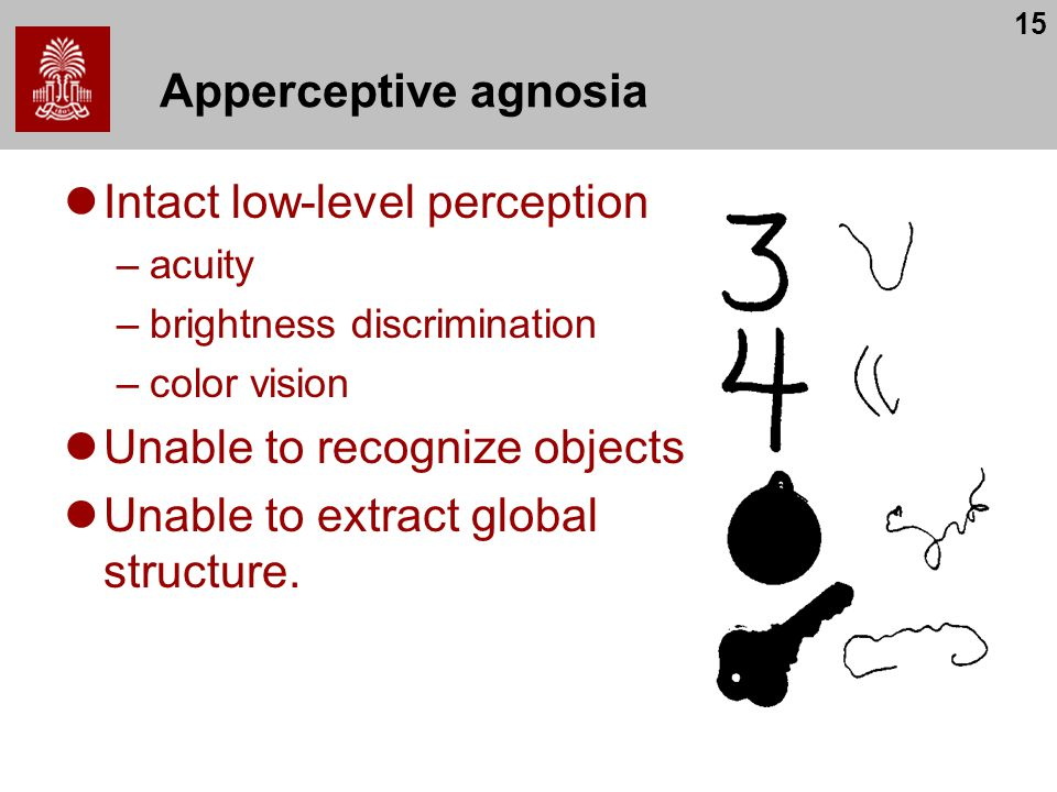 15 Apperceptive agnosia Intact low-level perception –acuity –brightness discrimination –color vision Unable to recognize objects Unable to extract glo