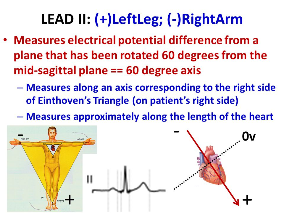 LEAD II: (+)LeftLeg; (-)RightArm Measures electrical potential difference from a plane that has been rotated 60 degrees from the mid-sagittal plane == 60 degree axis – Measures along an axis corresponding to the right side of Einthoven's Triangle (on patient's right side) – Measures approximately along the length of the heart 0v + - + -