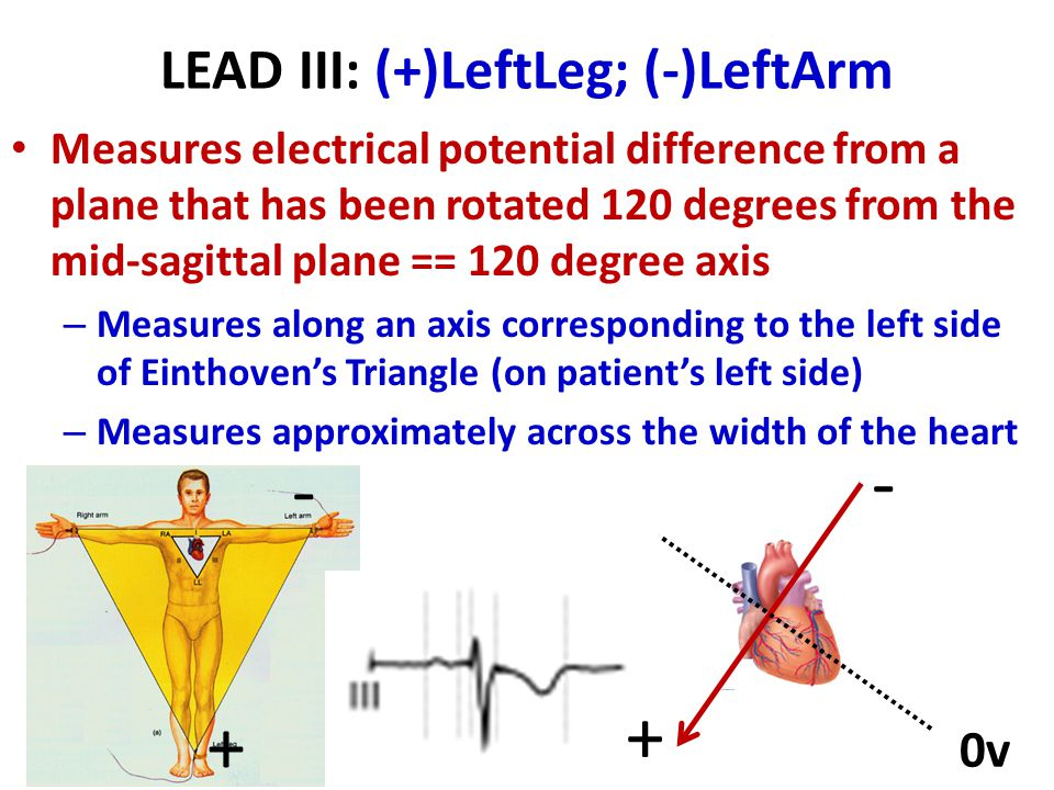 LEAD III: (+)LeftLeg; (-)LeftArm Measures electrical potential difference from a plane that has been rotated 120 degrees from the mid-sagittal plane =