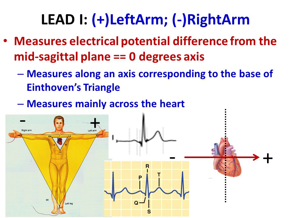 LEAD I: (+)LeftArm; (-)RightArm Measures electrical potential difference from the mid-sagittal plane == 0 degrees axis – Measures along an axis corres