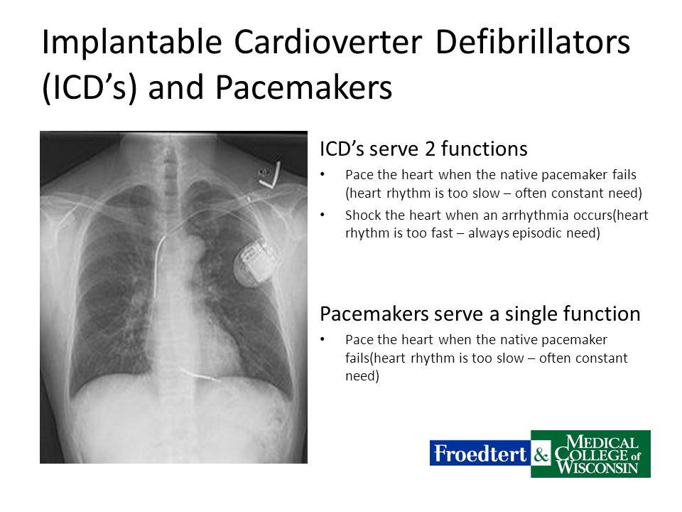 Implantable Cardioverter Defibrillators (ICD's) and Pacemakers ICD's serve 2 functions Pace the heart when the native pacemaker fails (heart rhythm is too slow – often constant need) Shock the heart when an arrhythmia occurs(heart rhythm is too fast – always episodic need) Pacemakers serve a single function Pace the heart when the native pacemaker fails(heart rhythm is too slow – often constant need)