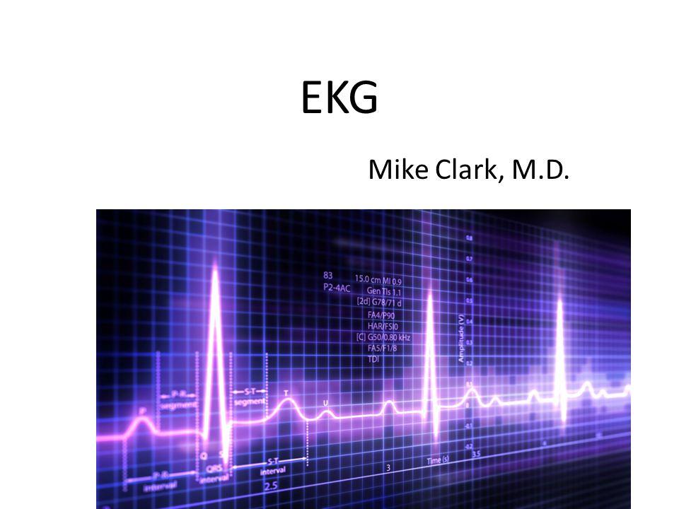 EKG Mike Clark, M.D.