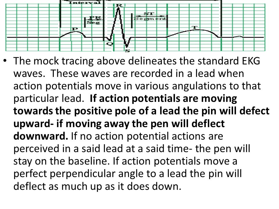 The mock tracing above delineates the standard EKG waves. These waves are recorded in a lead when action potentials move in various angulations to tha