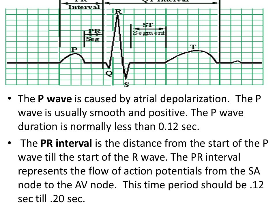 The P wave is caused by atrial depolarization. The P wave is usually smooth and positive. The P wave duration is normally less than 0.12 sec. The PR i