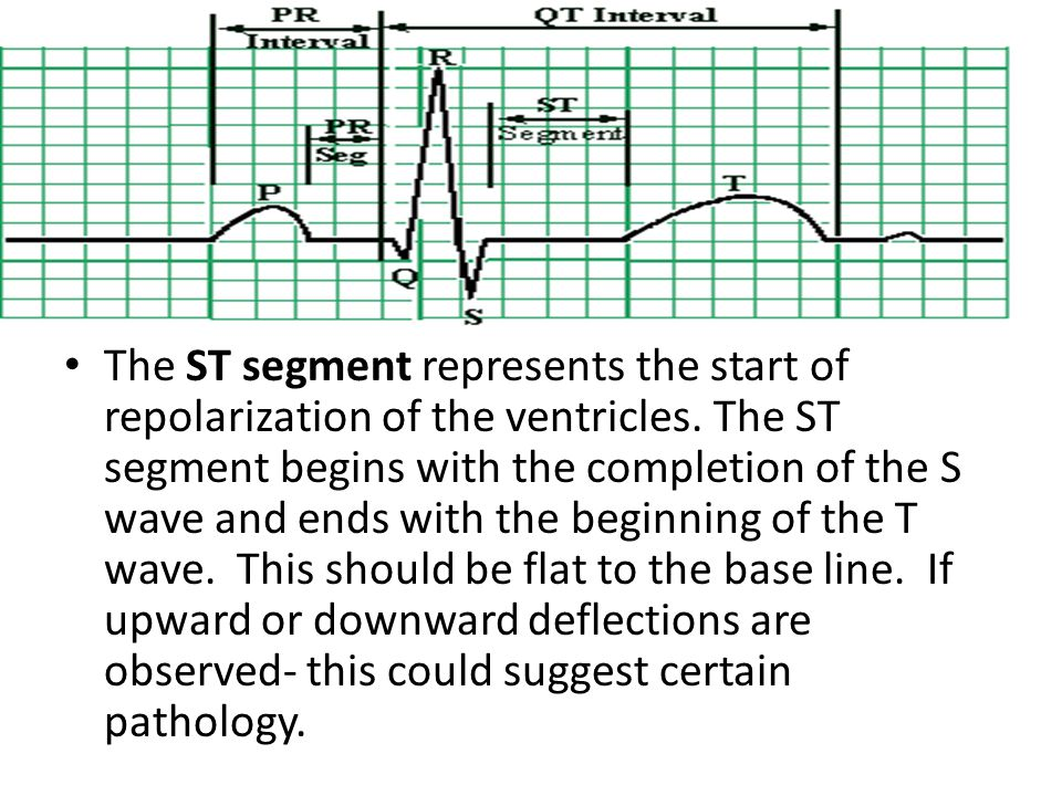 The ST segment represents the start of repolarization of the ventricles. The ST segment begins with the completion of the S wave and ends with the beg