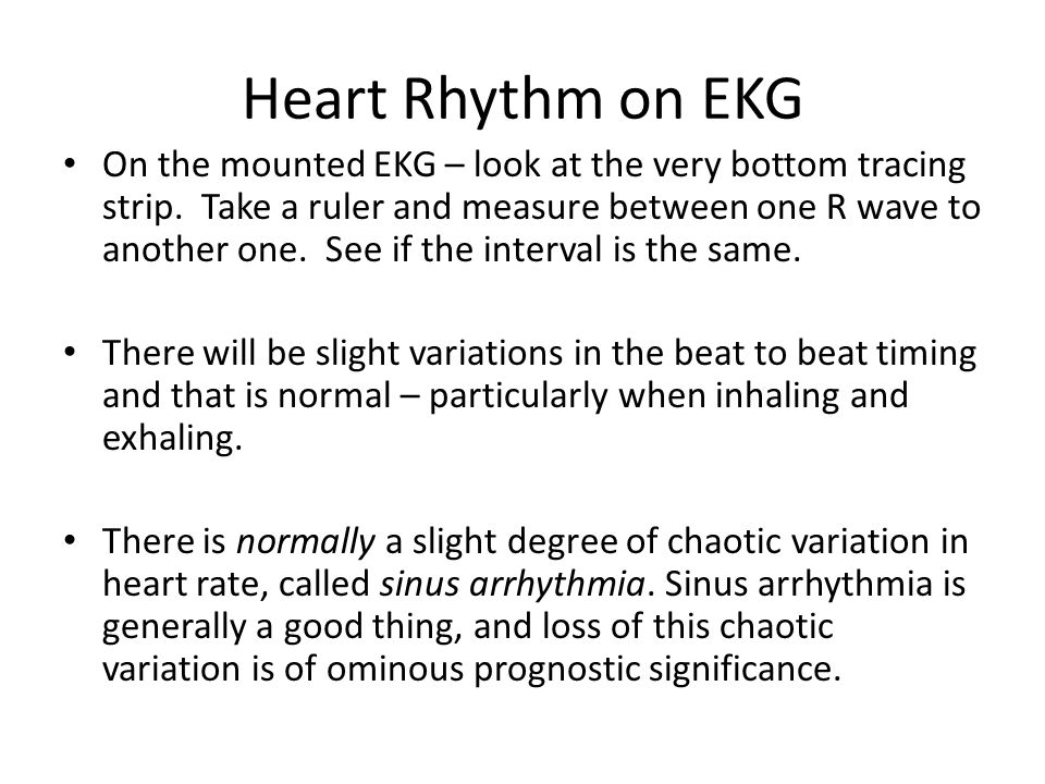 Heart Rhythm on EKG On the mounted EKG – look at the very bottom tracing strip. Take a ruler and measure between one R wave to another one. See if the