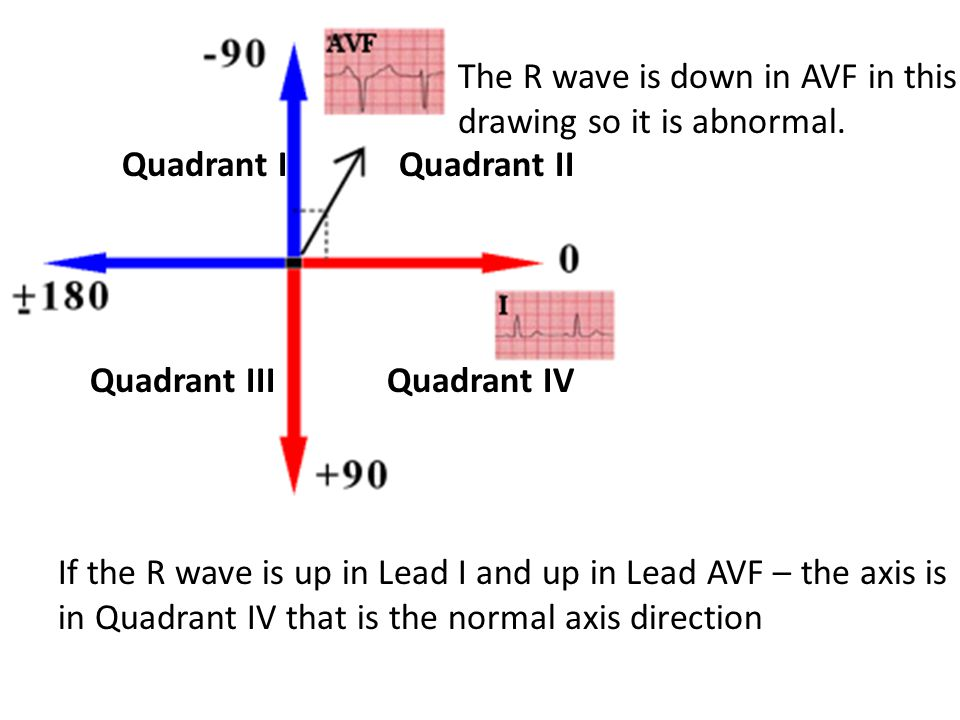 Quadrant I Quadrant II Quadrant III Quadrant IV If the R wave is up in Lead I and up in Lead AVF – the axis is in Quadrant IV that is the normal axis