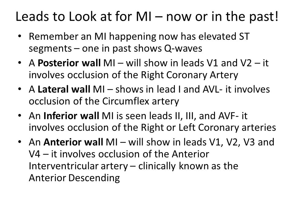 Leads to Look at for MI – now or in the past! Remember an MI happening now has elevated ST segments – one in past shows Q-waves A Posterior wall MI –