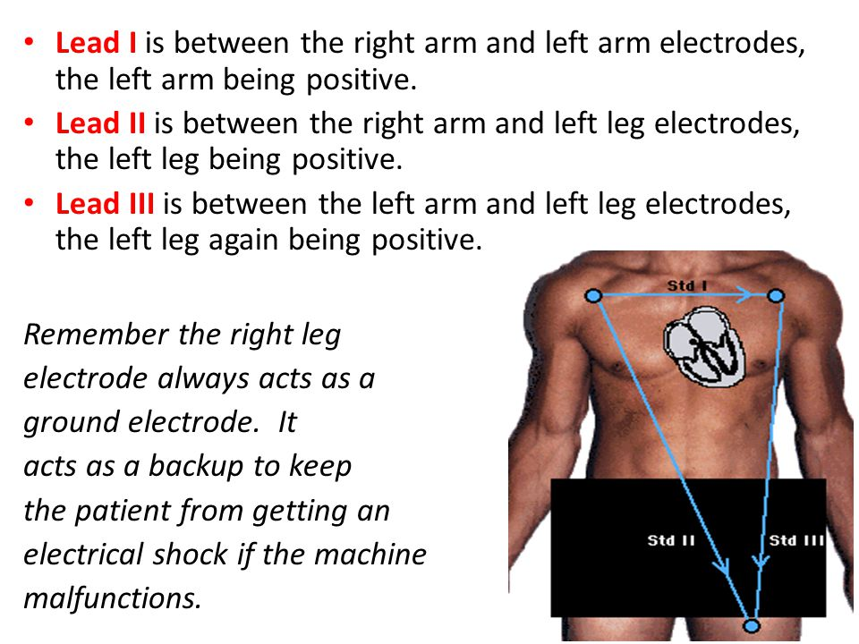 Lead I is between the right arm and left arm electrodes, the left arm being positive. Lead II is between the right arm and left leg electrodes, the le
