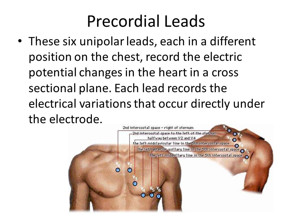 Precordial Leads These six unipolar leads, each in a different position on the chest, record the electric potential changes in the heart in a cross se