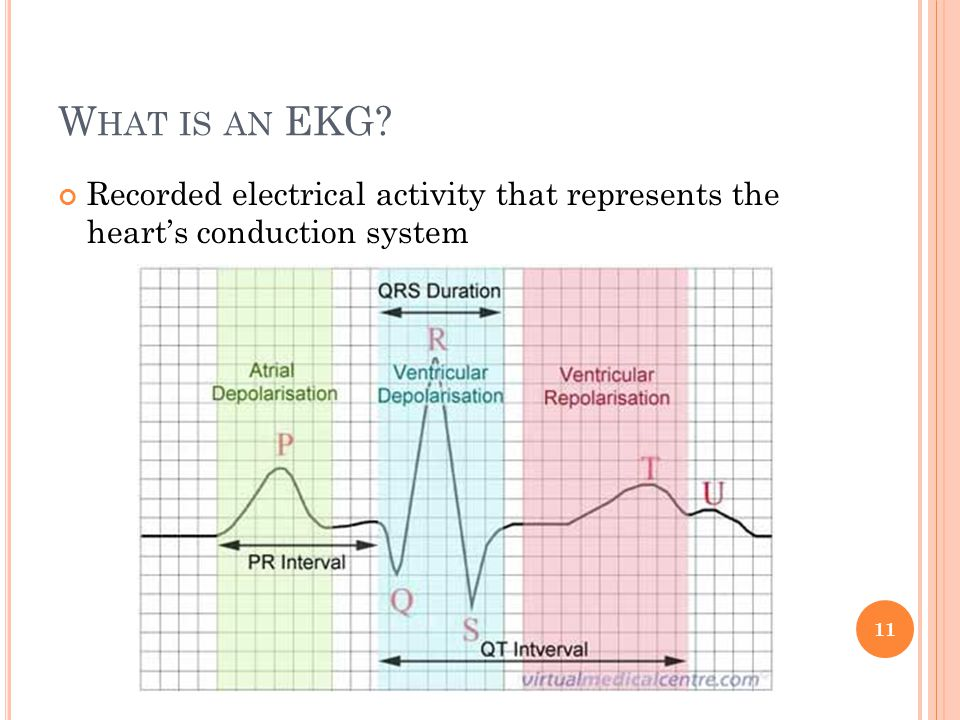 W HAT IS AN EKG? Recorded electrical activity that represents the heart's conduction system 11