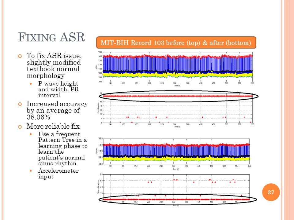 F IXING ASR To fix ASR issue, slightly modified textbook normal morphology P wave height and width, PR interval Increased accuracy by an average of 38.06% More reliable fix Use a frequent Pattern Tree in a learning phase to learn the patient's normal sinus rhythm Accelerometer input 37 MIT-BIH Record 103 before (top) & after (bottom)