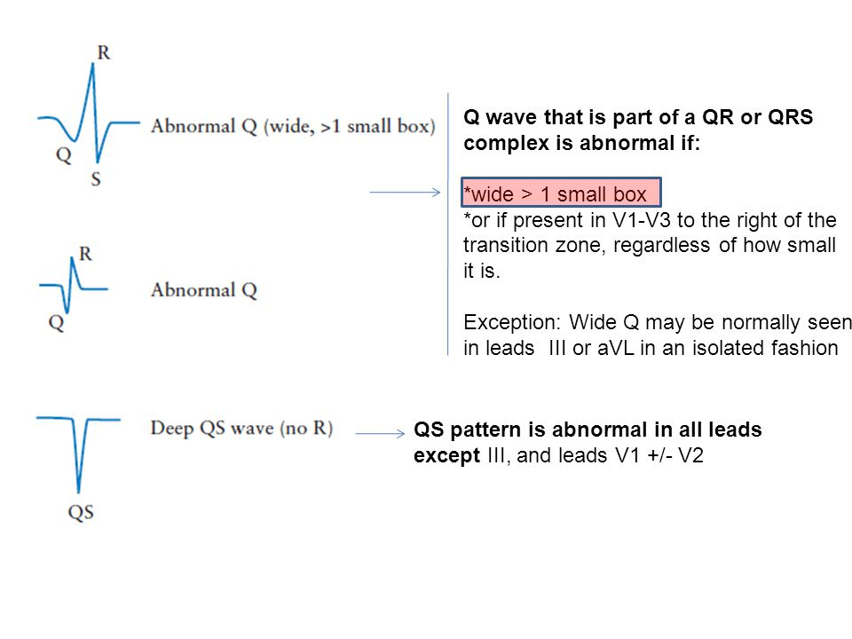 Q wave that is part of a QR or QRS complex is abnormal if: *wide > 1 small box *or if present in V1-V3 to the right of the transition zone, regardless of how small it is.