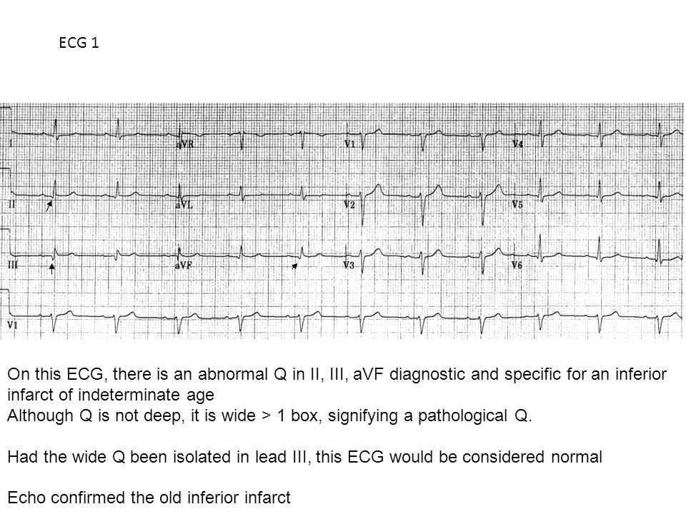 ECG 1 On this ECG, there is an abnormal Q in II, III, aVF diagnostic and specific for an inferior infarct of indeterminate age Although Q is not deep, it is wide > 1 box, signifying a pathological Q.