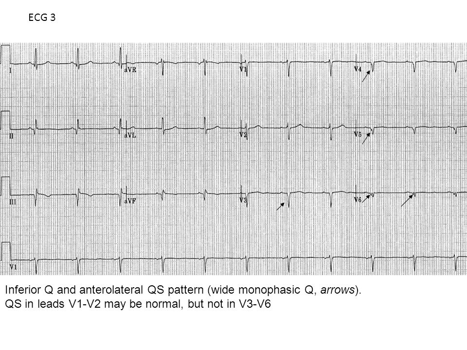 ECG 3 Inferior Q and anterolateral QS pattern (wide monophasic Q, arrows).
