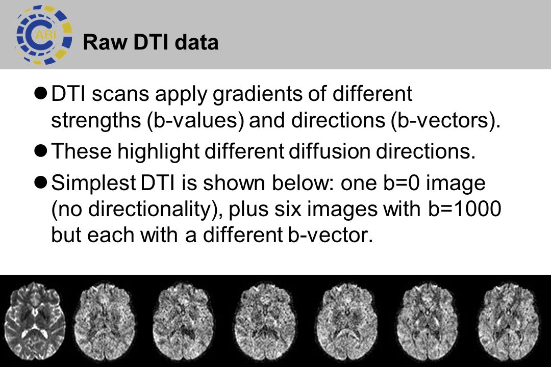 5 Raw DTI data DTI scans apply gradients of different strengths (b-values) and directions (b-vectors). These highlight different diffusion directions.