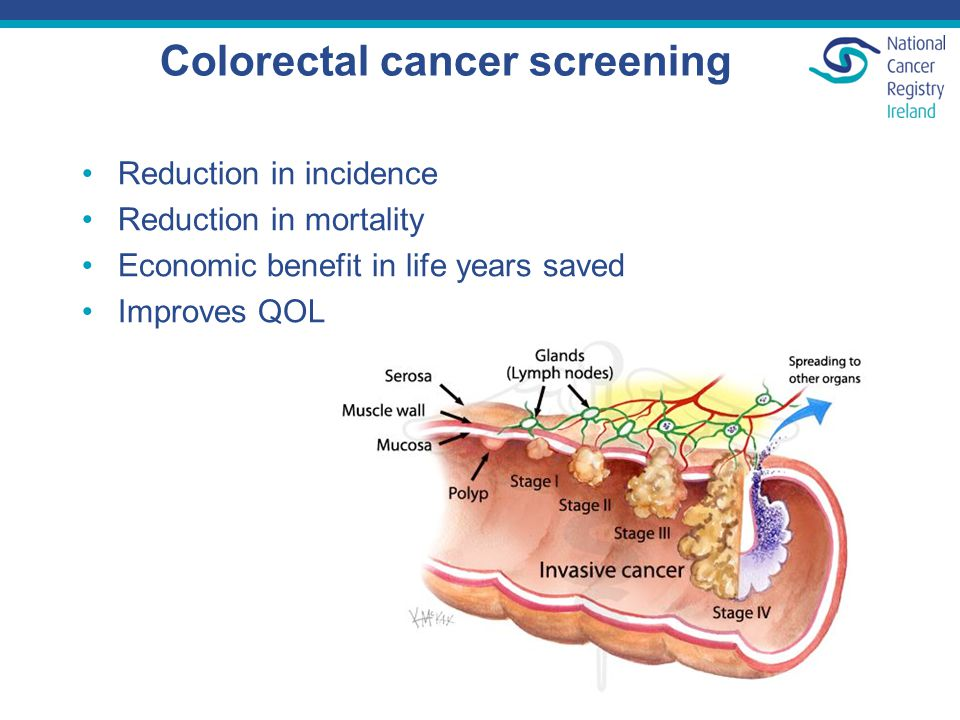 Colorectal cancer screening Reduction in incidence Reduction in mortality Economic benefit in life years saved Improves QOL