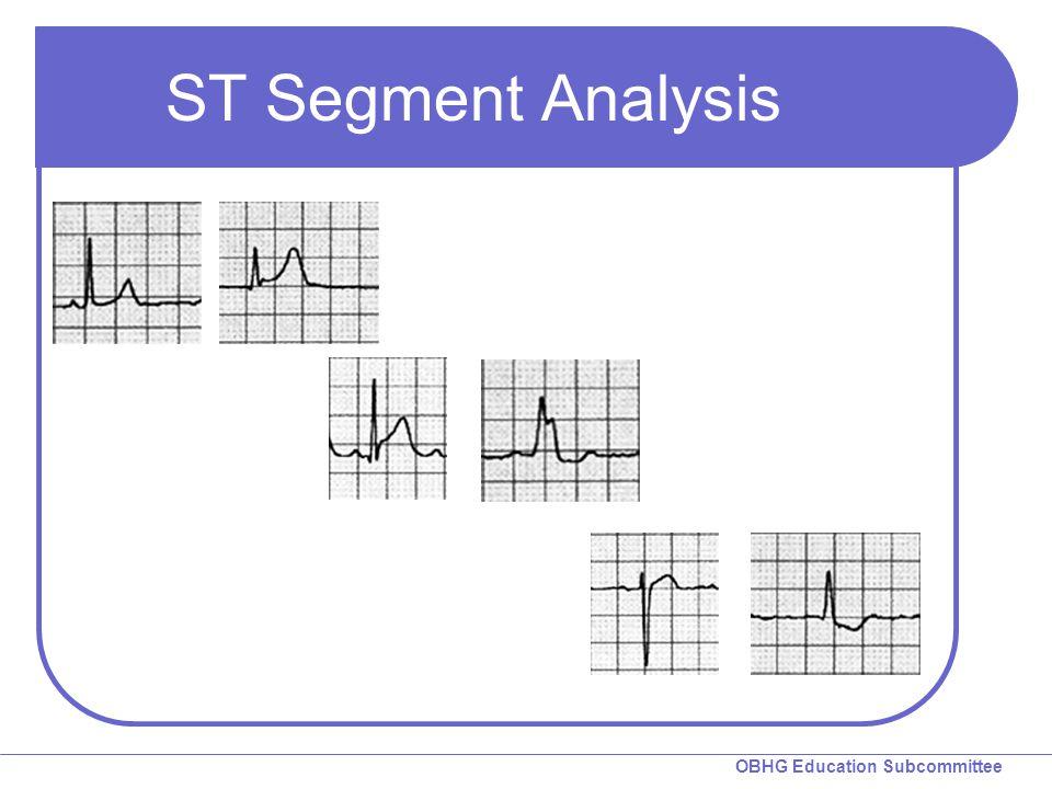 OBHG Education Subcommittee ST Segment Analysis
