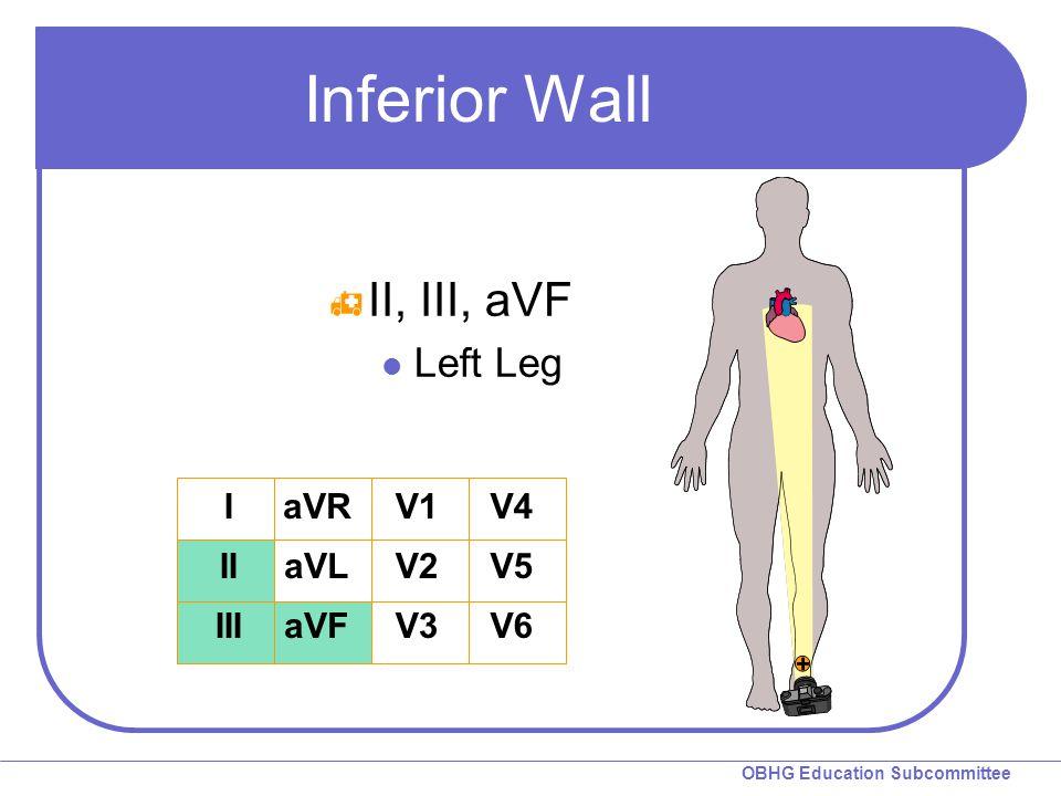 OBHG Education Subcommittee Inferior Wall  II, III, aVF Left Leg I II III aVR aVL aVF V1 V2 V3 V4 V5 V6